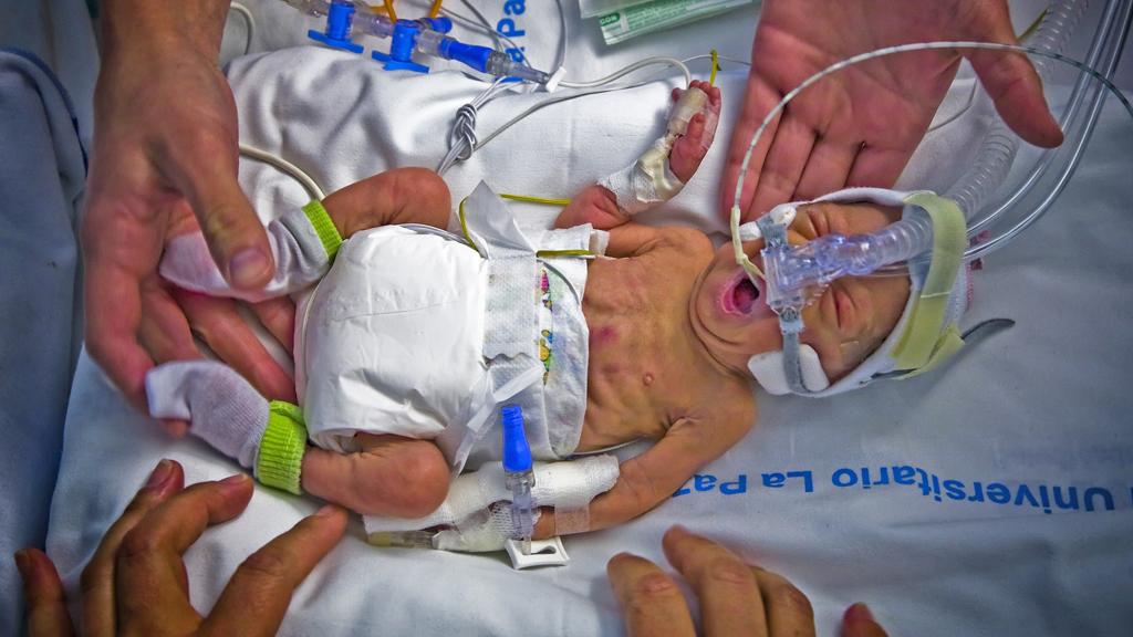 Premature Births An Unrecognised Killer Channel 4 News