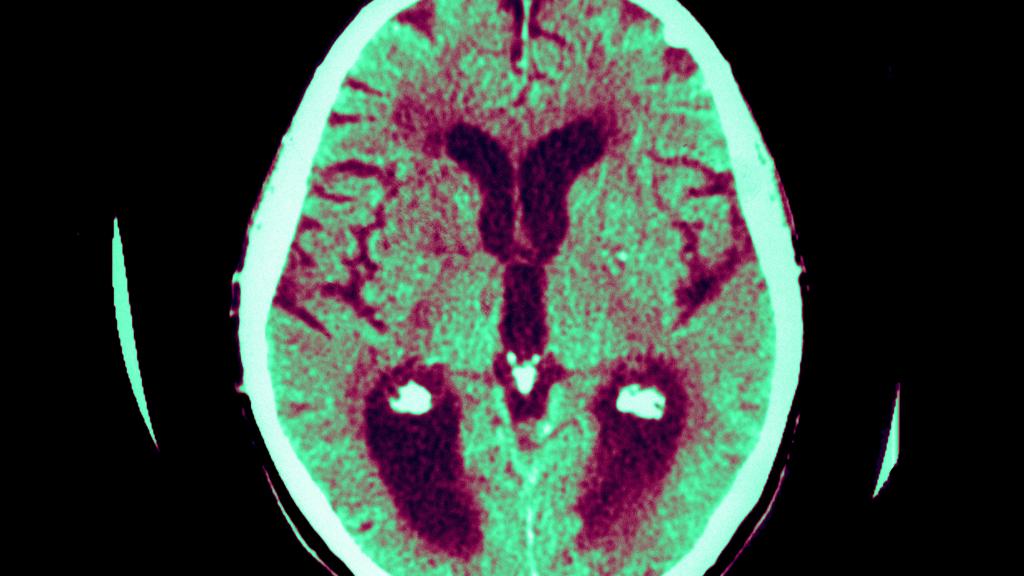 Alzheimer's brain scan (Getty)