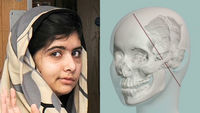 Malala Yousafzai and a computer generated image of her skull (picture of Malala - Reuters, skull CGI - Queen Elizabeth Hospital)