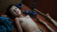 Douma attack: child injured in Syrian government airstrike