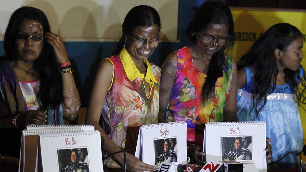 Acid victims launch calendar (Getty)