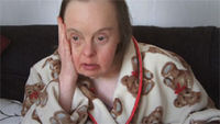 More people with Down's syndrome developing dementia