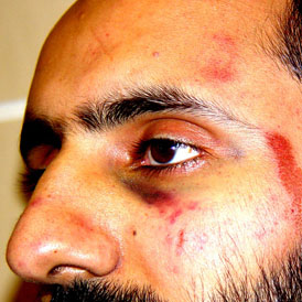 Four police officers are cleared of assaulting Babar Ahmad