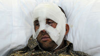 Libya: an inured man awaits treatment in Benghazi after being evacuated from Misrata (Getty)