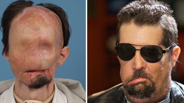 CHECK OUT THE DUDE WHO HAD A FACE TRANSPLANT! HOLY CRAP!