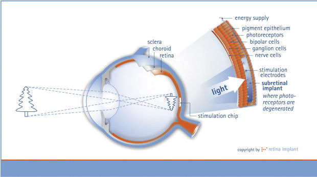 Graphic showing how the implant works (Retina Implant AG)