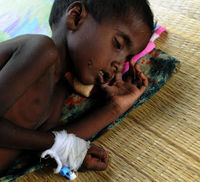 A wounded displaced Tamil child sleeps on the floor of a hospital in Chettikulam, northern Sri Lanka. (Getty)