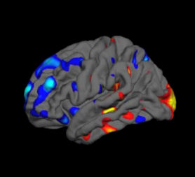 Brain scan could diagnose autism in 15 minutes - Channel 4 News